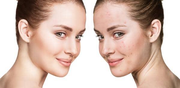 Dr.ohhira probiootiline nahahooldus probleemne nahk