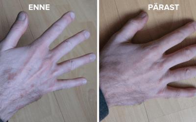 Tarmo lugu: soolestiku töö korrastamise abil nahalööbest priiks
