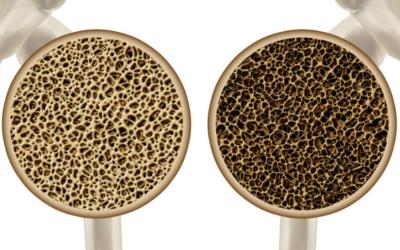 Osteoporoos – 5 soovitust, kuidas seda ennetada