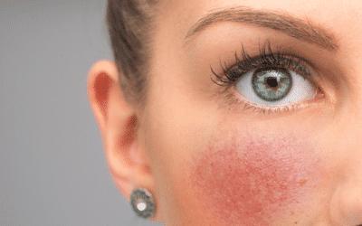 Atoopiline dermatiit, akne, psoriaas või põletikuline nahk? Probiootikumid tulevad appi!